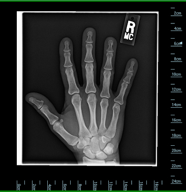 hand1cropped